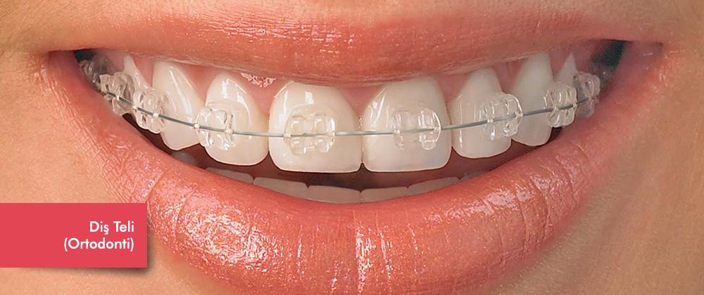 ortodontibanner